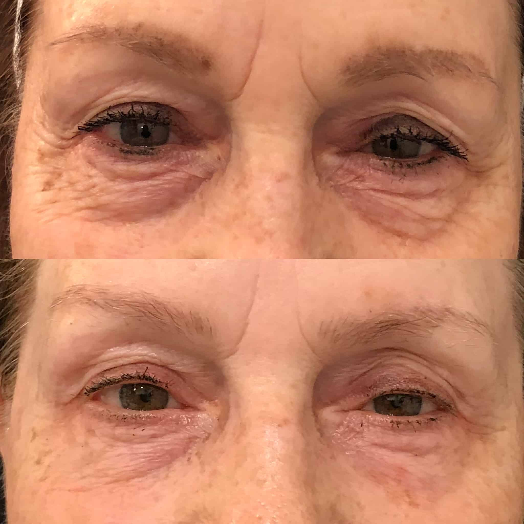 Vivace® RF Microneedling - Medical Spa Sacramento ~ Botox